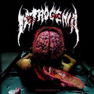 iatrogenia-negligence